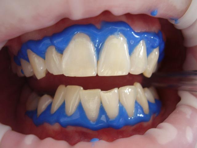 מהי הלבנת שיניים?